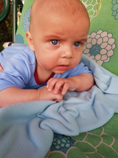 Ребенку 4 месяца и он лысый...