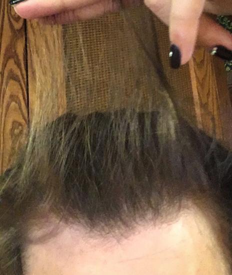 Год назад волосы лезли клочками😂😭
