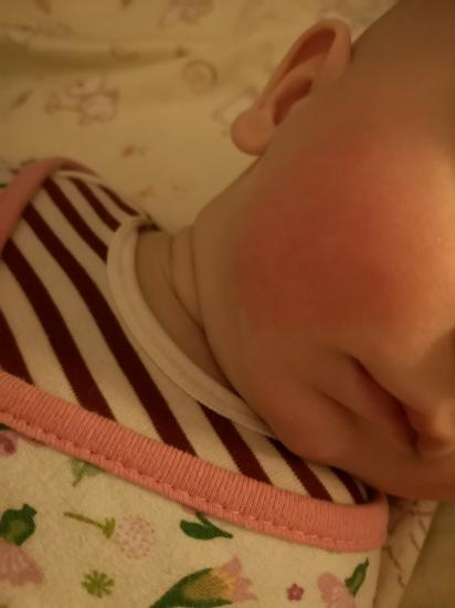 У ребёнка красные щеки и подбородок!